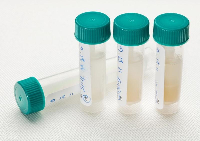 other biological samples